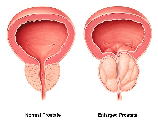 صورة اسباب تضخم البروستاتا , اعراض مرض البروستاتا