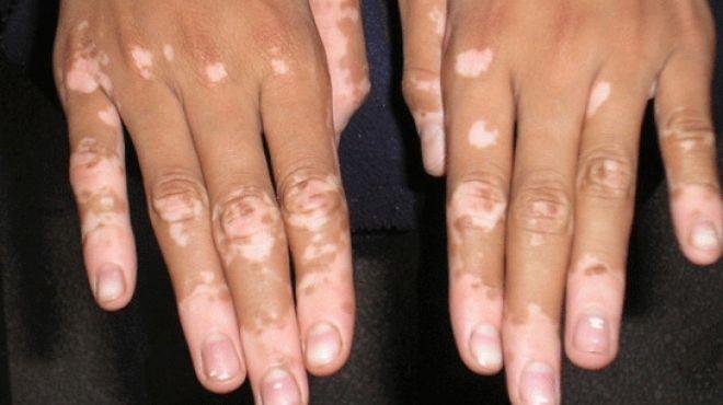 صورة مرض البهاق , علاجات طبية لامراض الجلدية