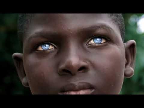 صورة صور عيون ساحرة , اجمل العيون للاطفال الافارقة