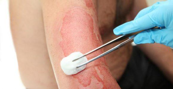 صورة علاج الحروق , علاجات منزلية للحروق