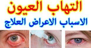علاج العين , كيفية علاج التهابات العين