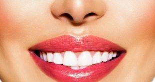 بالصور خلطات تبيض الاسنان , وصفات طبيعية لتبييض الاسنان 1596 3 310x165