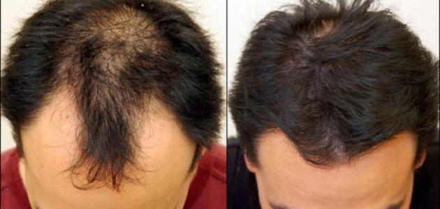 صوره علاج تساقط الشعر للرجال , افضل الطرق الفعالة لتساقط الشعر
