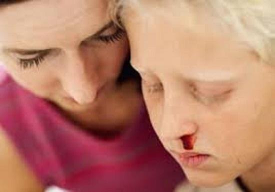 بالصور اعراض سرطان الدم , ماهى الاعراض التى تظهر على الانسان فى سرطان الدم 1028 2