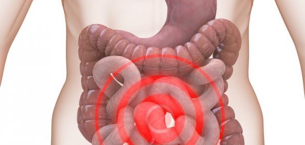 بالصور اعراض القولون العصبي , ماهى اعراض القولون العصبى 1042