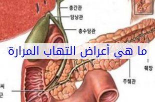 صوره اعراض المرارة , ماهي اعراض المرارة