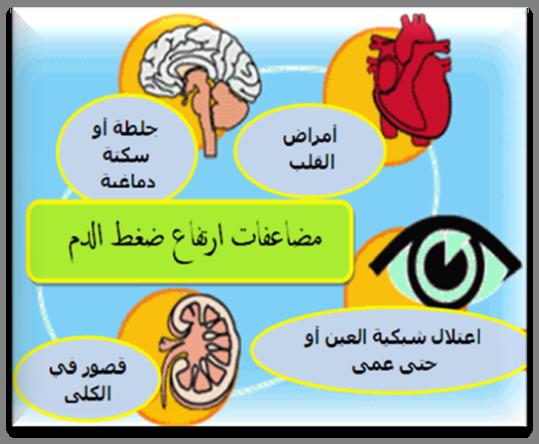 صوره اسباب ارتفاع ضغط الدم , اسباب ضغط الدم المرتفع