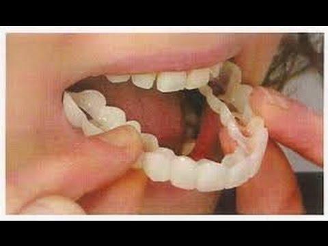 صورة طقم اسنان , نصائح عند تركيب طقم الاسنان