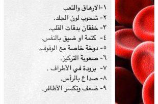 بالصور اعراض فقر الدم , اكتشف المرض وعالجه 5005 3 310x205