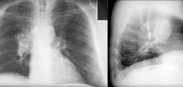 بالصور اعراض سرطان الرئة , اكتشف مرض سرطان الرئة بسرعة وتعرف علي اعراضه 5126 1