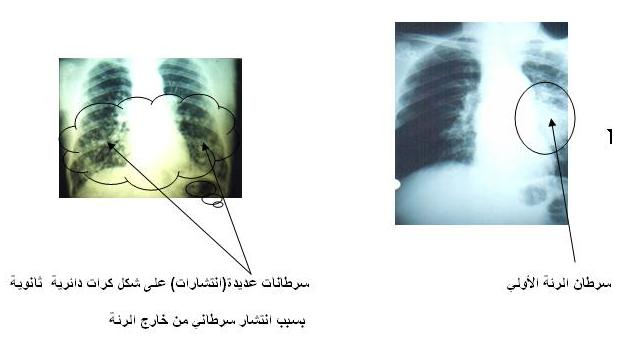 بالصور اعراض سرطان الرئة , اكتشف مرض سرطان الرئة بسرعة وتعرف علي اعراضه 5126 2