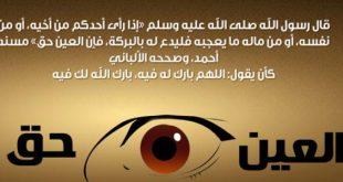 بالصور علاج الحسد , اعراض وعلاج الاصابه بالحسد والعين 5195 3 310x165