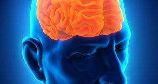 صوره اعراض سرطان الدماغ , كيفيه معرفة مرض سرطان الدماغ