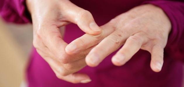 صوره علاج الروماتيزم , كيفيه معالج مرض الروماتيزم