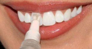 صورة كيفية تبييض الاسنان , طرق للحصول على اسنان بيضاء