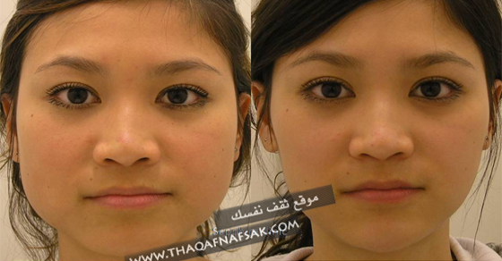 بالصور تنحيف الوجه , بعض الوصفات التى تساعد على تخسيس الوجه 813