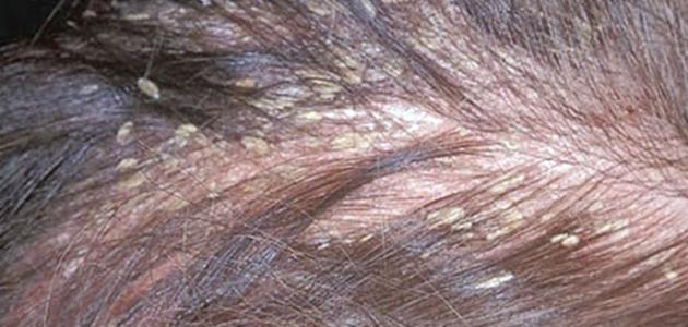 صوره علاج القمل , كيفيه التخلص من حشرات الشعر