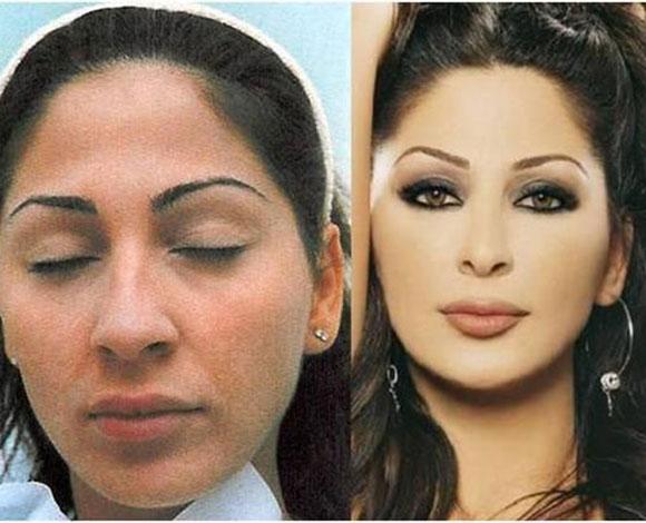 صوره صور تجميل , صور مذهلة قبل و بعد التجميل لن تصدق الفرق