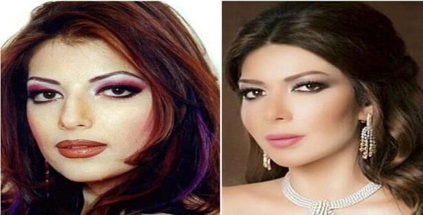 بالصور صور تجميل , صور مذهلة قبل و بعد التجميل لن تصدق الفرق 1771 10