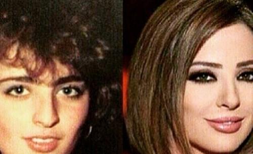 بالصور صور تجميل , صور مذهلة قبل و بعد التجميل لن تصدق الفرق 1771 11