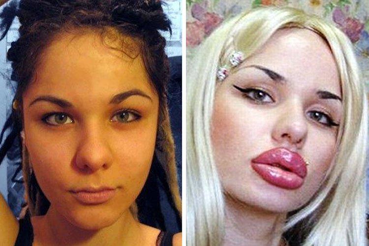 بالصور صور تجميل , صور مذهلة قبل و بعد التجميل لن تصدق الفرق 1771 15