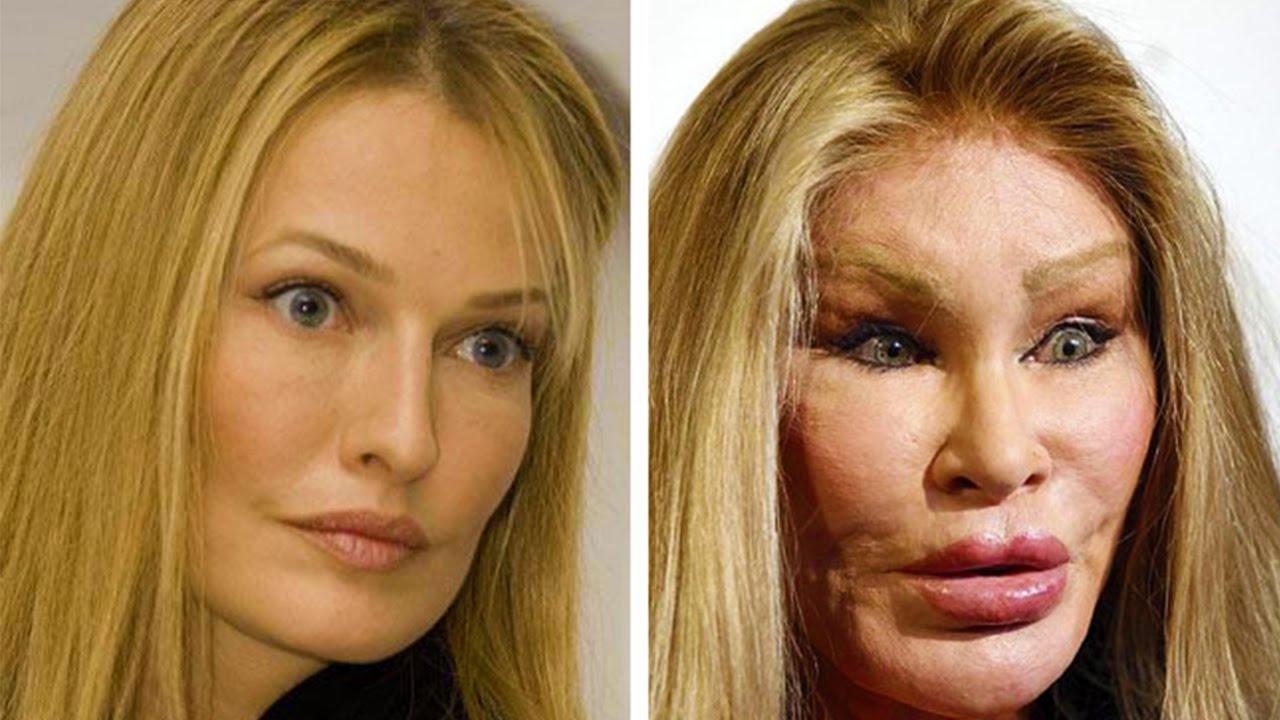 بالصور صور تجميل , صور مذهلة قبل و بعد التجميل لن تصدق الفرق 1771 18