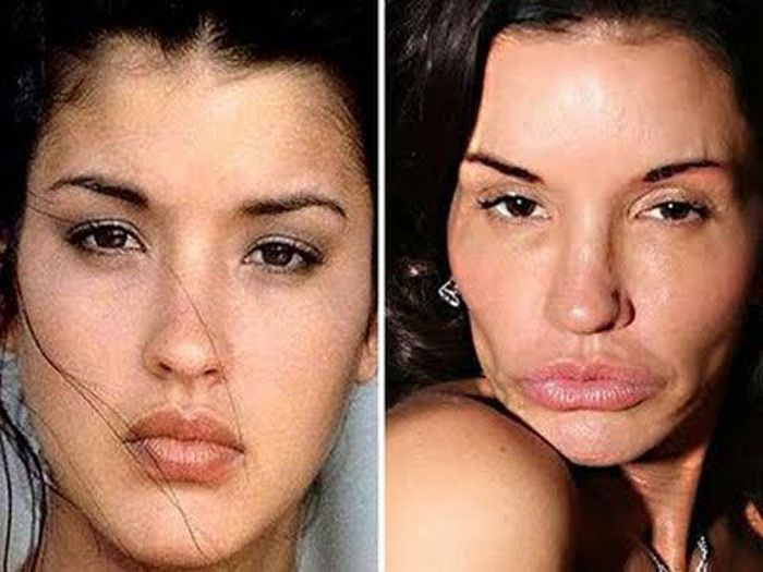 بالصور صور تجميل , صور مذهلة قبل و بعد التجميل لن تصدق الفرق 1771 19