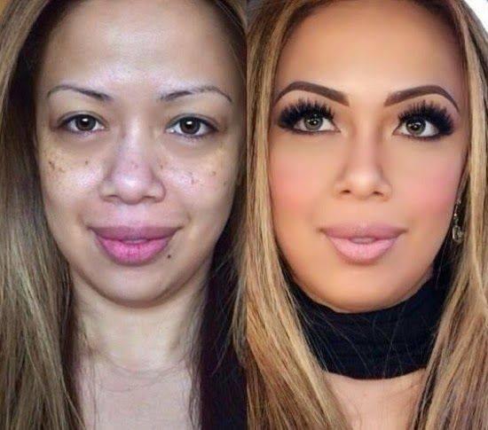 بالصور صور تجميل , صور مذهلة قبل و بعد التجميل لن تصدق الفرق 1771 2