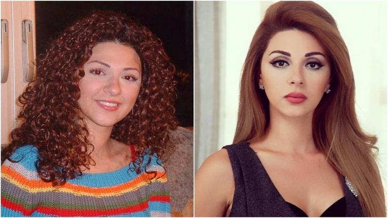 بالصور صور تجميل , صور مذهلة قبل و بعد التجميل لن تصدق الفرق 1771 6
