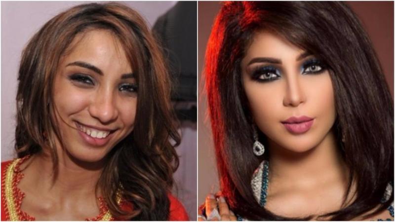 بالصور صور تجميل , صور مذهلة قبل و بعد التجميل لن تصدق الفرق 1771 7
