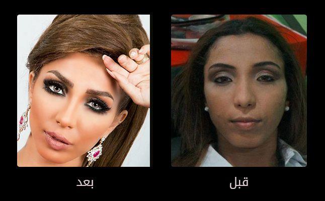 بالصور صور تجميل , صور مذهلة قبل و بعد التجميل لن تصدق الفرق 1771