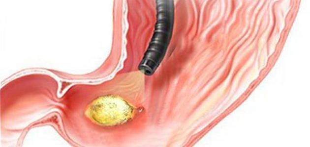 صورة اعراض جرثومة المعدة , اعراض و اسباب جرثومة المعدة