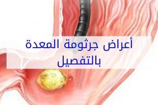 بالصور اعراض جرثومة المعدة , اعراض و اسباب جرثومة المعدة 440 3 310x205