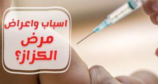 صوره مرض الكزاز , اسباب ومخاطر الكزاز