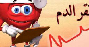 صورة مرض فقر الدم , نصائح لمرضي فقر الدم
