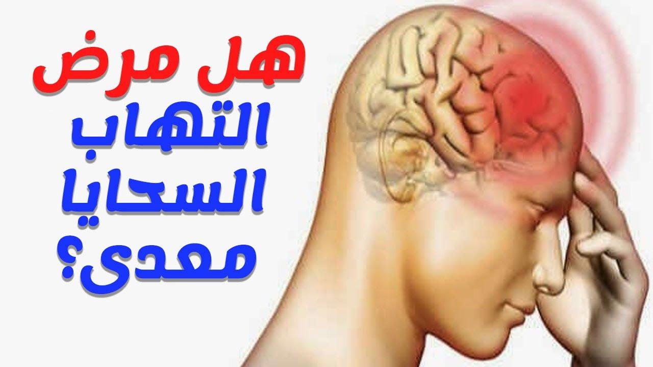 صورة مرض السحايا , اعراض مرض السحايا وكيف ينقل من شخص لاخر