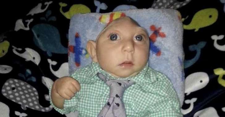 بالصور الطفل المعجزة , طفل معجزة يعيش بدون دماغ 1665 2
