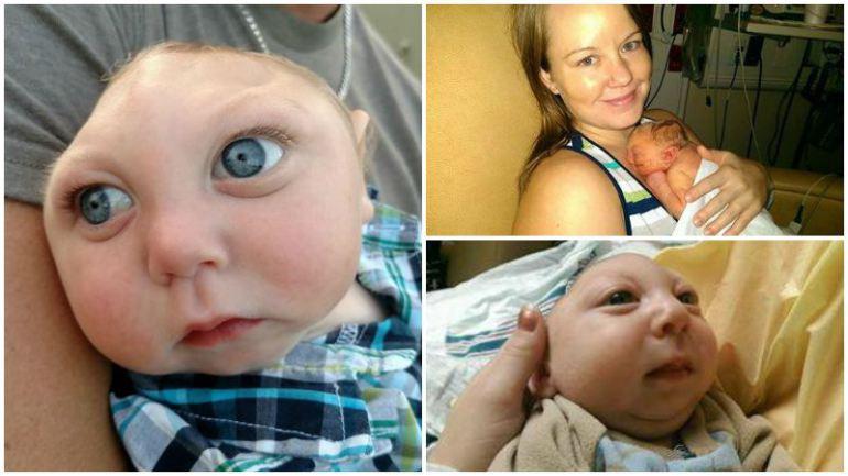 صور الطفل المعجزة , طفل معجزة يعيش بدون دماغ