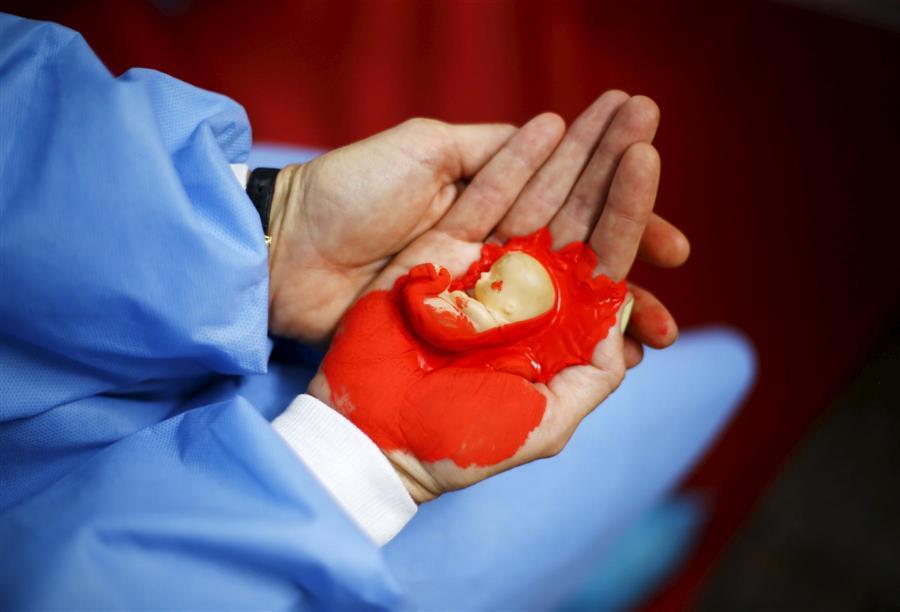 بالصور جرعة سايتوتك للاجهاض , تعرف علي جرعة عقار سايتوتك لغرض الاجهاض 458 1