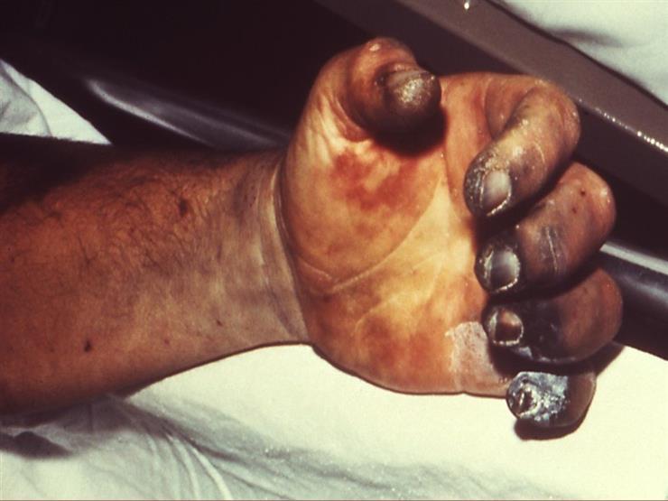 بالصور مرض الطاعون , تعرف علي الطاعون وطرق العدوي به 1628 2