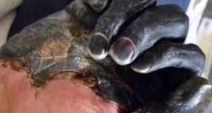 بالصور مرض الطاعون , تعرف علي الطاعون وطرق العدوي به 1628 310x165