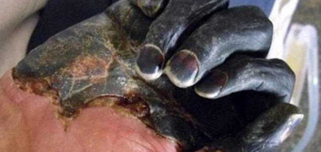 بالصور مرض الطاعون , تعرف علي الطاعون وطرق العدوي به 1628