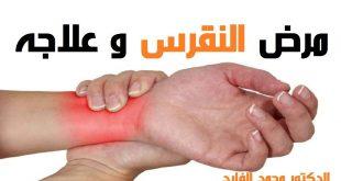 بالصور مرض النقرس , الاعراض المرضيه للنقرس 82 2 310x165