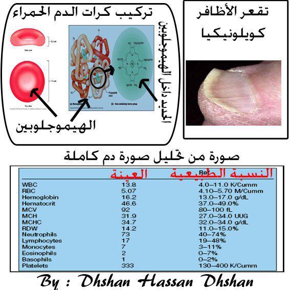 صور نسبة الانيميا الطبيعية , ما هي النسبة الطبيعيه للانيميا في الجسم
