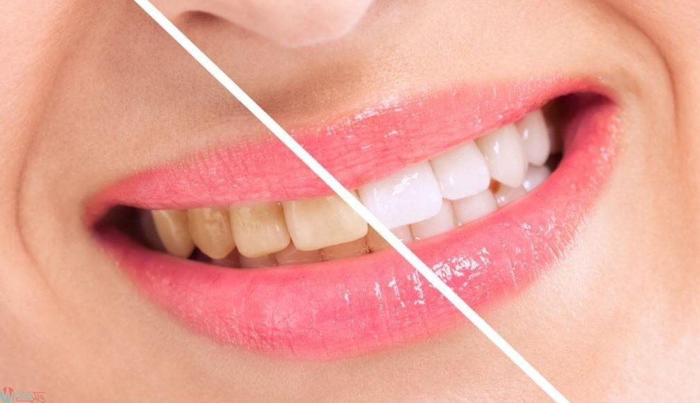 صور تجربتي مع بيكربونات الصوديوم لتبييض الاسنان , فوائد متعدده لبيكربونات الصوديوم في تنظيف الاسنان