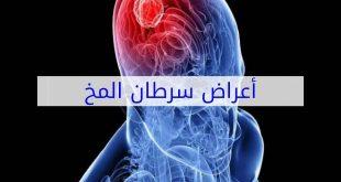 صور اعراض ورم المخ , ماهي الاعراض السرطان في المخ
