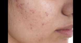 صور علاج الحبوب الصغيرة في الوجه , كيفيه التخلص من حبوب الوجه الصغيرة