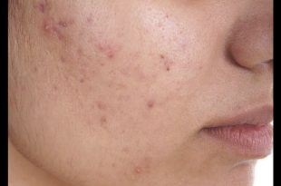 صورة علاج الحبوب الصغيرة في الوجه , كيفيه التخلص من حبوب الوجه الصغيرة
