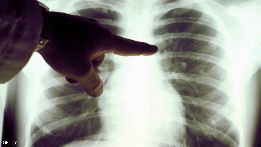 صورة اعراض جلطة الرئة , ماهي الاعراض الخاصة بجلطة الرئه