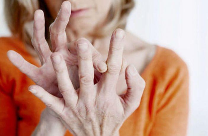 صورة اعراض مرض الروماتيزم , ماهى الاعراض التى تظهر علي مريض الروماتيزم